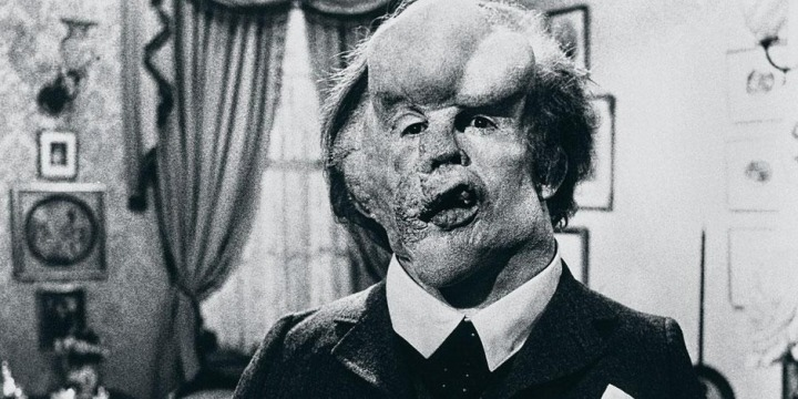 "Image de John Hurt qui incarne John Merrick alias l'Elephant Man dans le film ""Elephant Man"" de David Lynch."